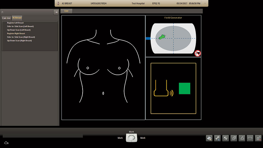 AI Breast Registration Screen
