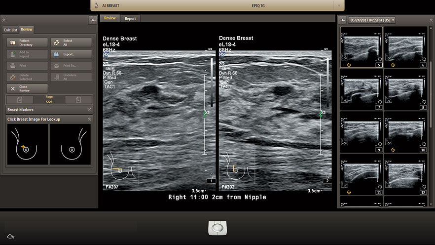 eL18-4 AI Dense Breast Find Orthogonal