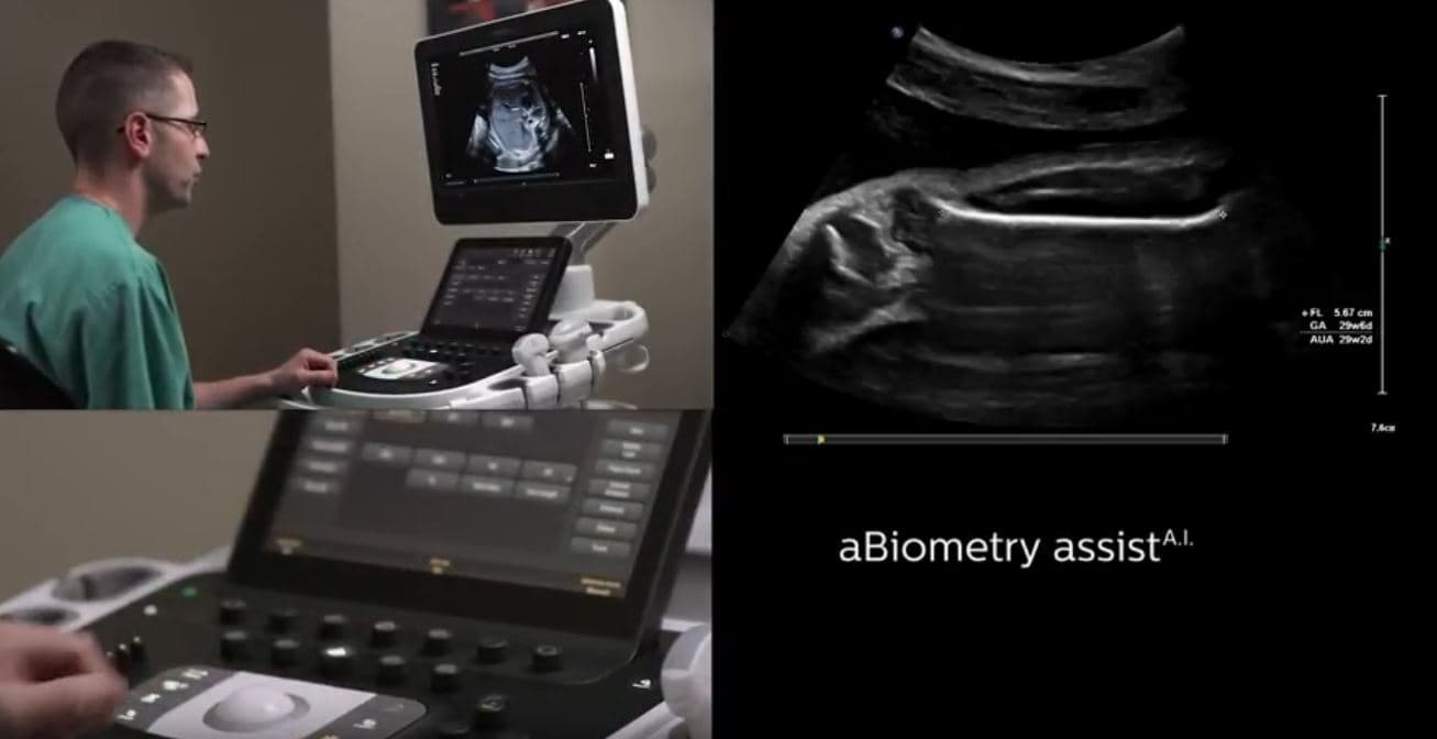Philips biometry assist