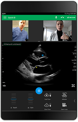Live integrated tele-ultrasound
