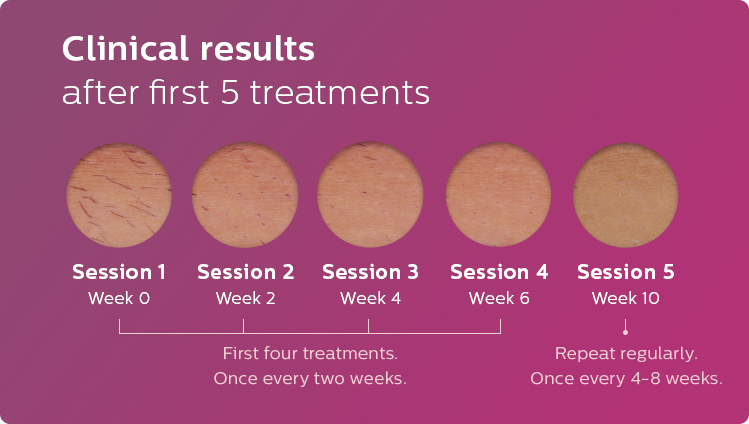 Clinical results after first 5 treatments