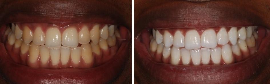 Home Teeth Whitening Philips