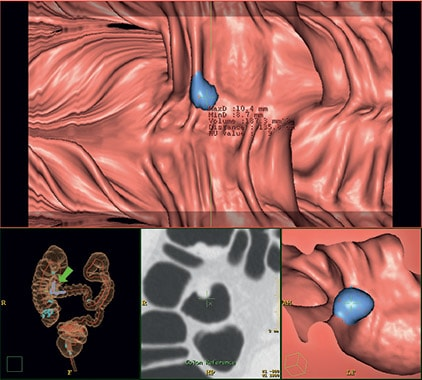 ct-virtual-colonoscopy
